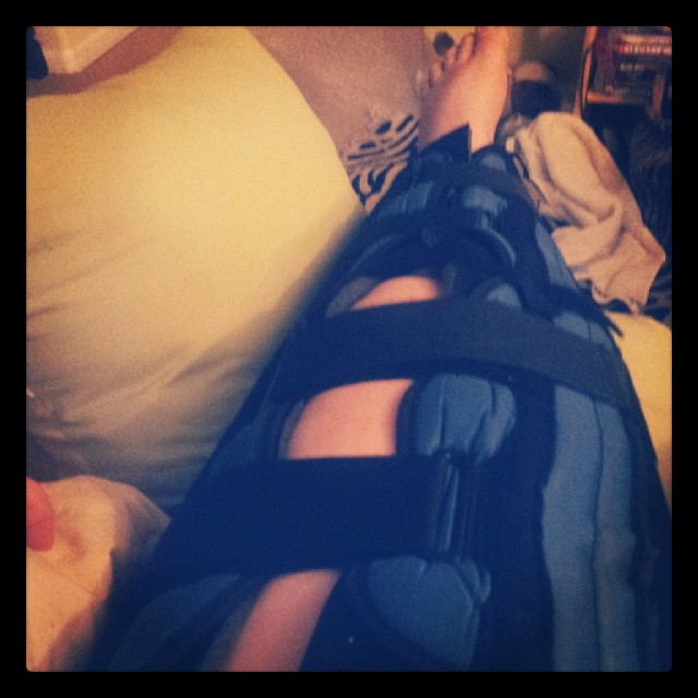 My leg in an immobilizer.